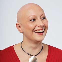 glenn-james-hair-loss-bald