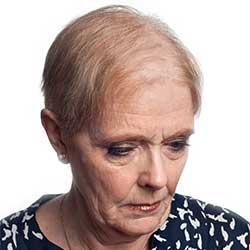 glenn-james-hair-loss-thin